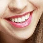 Orthodontie verzekeren voor volwassenen
